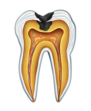 Illustrated diagram of a cavity